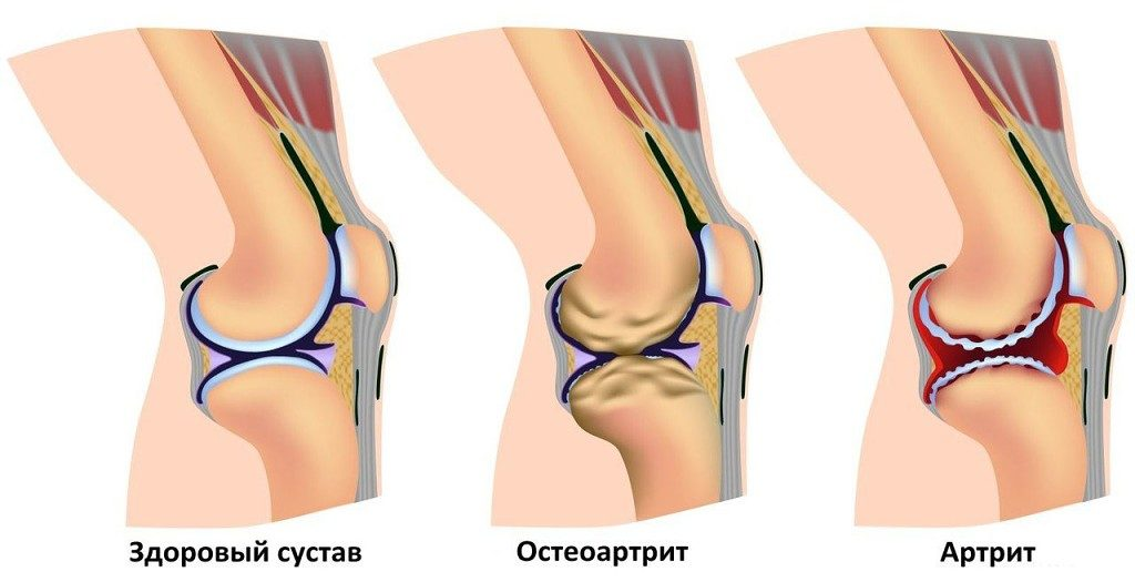 Очищние суставов в домашних условиях лечение подагры коленного сустава