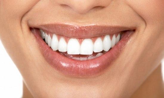 как отбеливать зубы