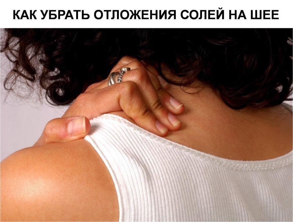 Как убрать отложение солей на шее в домашних условиях