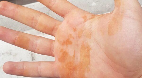 руки испачканы йодом