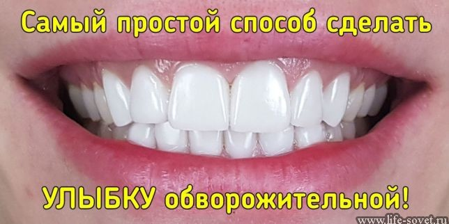 perfect smile veneer 1290 ооо