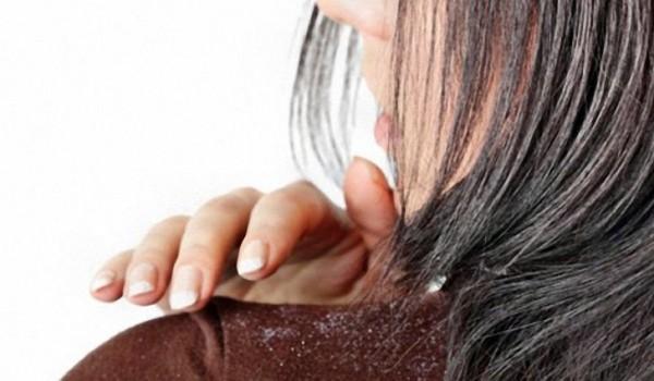 Маска для волос от перхоти в домашних условиях