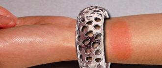 аллергия на никель на руке